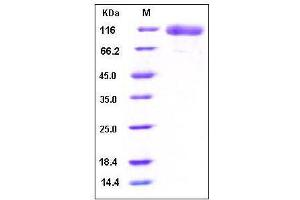 SDS-PAGE (SDS) image for Epidermal Growth Factor Receptor (EGFR) (Extracellular Domain), (AA 1-645) (Active) protein (His tag) (ABIN2001843)