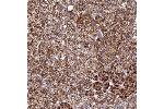 Immunohistochemistry (Paraffin-embedded Sections) (IHC (p)) image for anti-RERG/RAS-Like (RERGL) antibody (ABIN4350011)