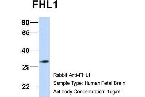 Image no. 2 for anti-Four and A Half LIM Domains 1 (FHL1) (N-Term) antibody (ABIN2777486)