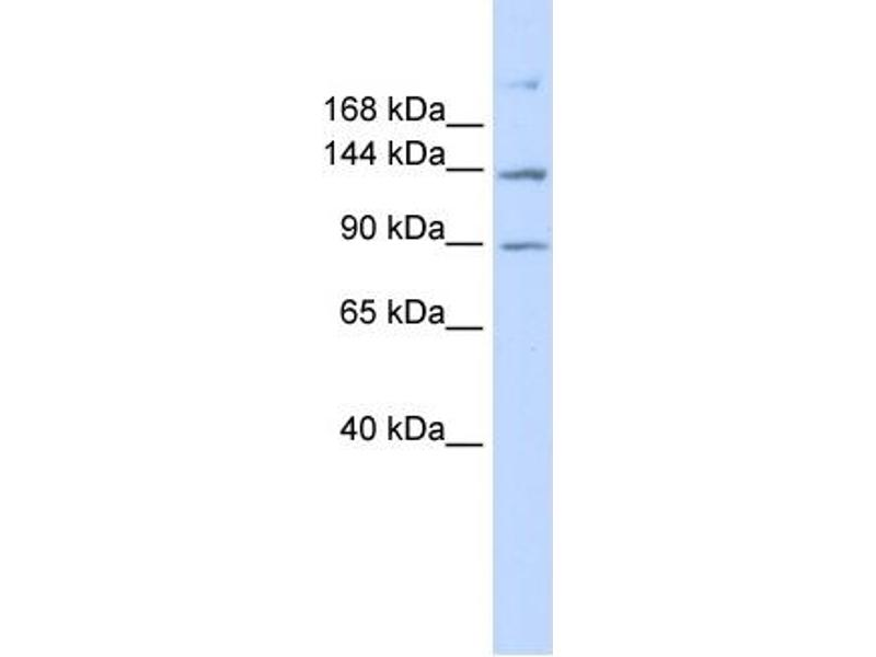 Western Blotting (WB) image for anti-ATP-Binding Cassette, Sub-Family B (MDR/TAP), Member 4 (ABCB4) (N-Term) antibody (ABIN2776966)