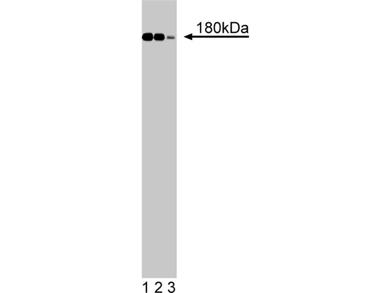Western Blotting (WB) image for anti-Insulin Receptor Substrate 1 (IRS1) (AA 1131-1234) antibody (ABIN968515)
