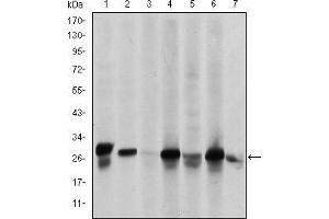 Western Blotting (WB) image for anti-Heat Shock 27kDa Protein 1 (HSPB1) antibody (ABIN969199)