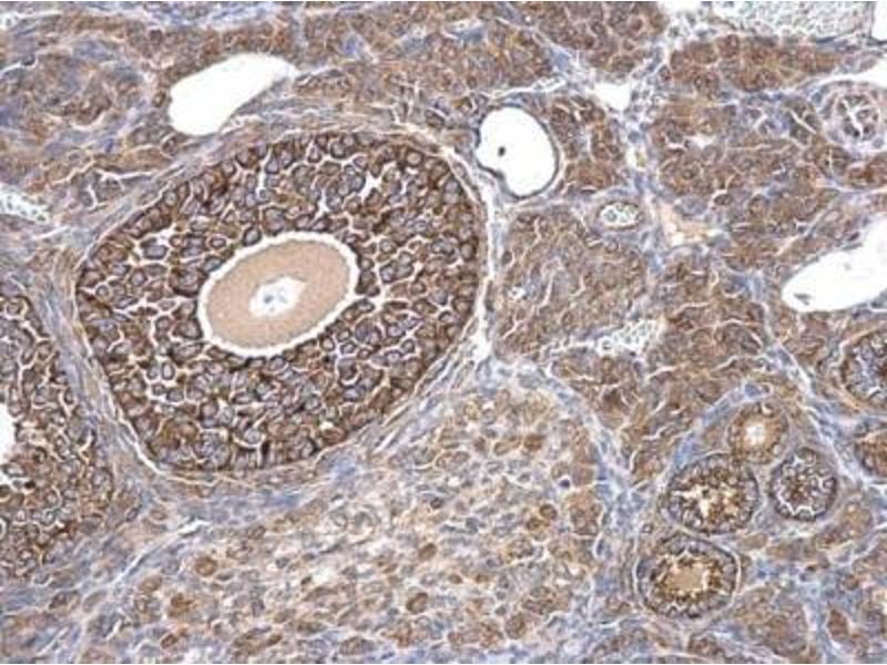 Immunohistochemistry (IHC) image for anti-Anti-Mullerian Hormone (AMH) (C-Term) antibody (ABIN4334571)