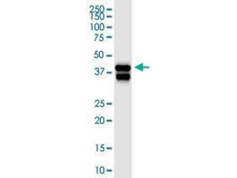 Western Blotting (WB) image for anti-serpin Peptidase Inhibitor, Clade B (Ovalbumin), Member 5 (SERPINB5) (AA 1-231), (full length) antibody (ABIN2565883)