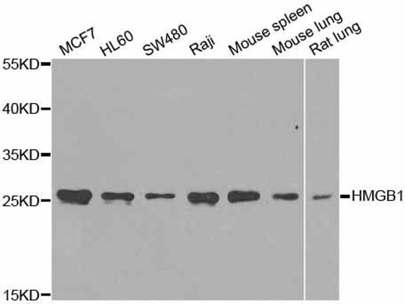 Western Blotting (WB) image for anti-High-Mobility Group Box 1 (HMGB1) antibody (ABIN2973987)
