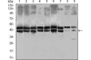 Western Blotting (WB) image for anti-CD25 antibody (Interleukin 2 Receptor, alpha) (AA 34-139) (ABIN1724861)