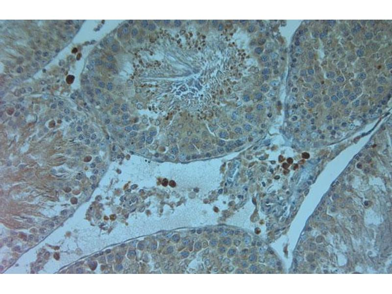 Image no. 2 for anti-Transient Receptor Potential Cation Channel, Subfamily V, Member 4 (TRPV4) (AA 100-150) antibody (ABIN351276)