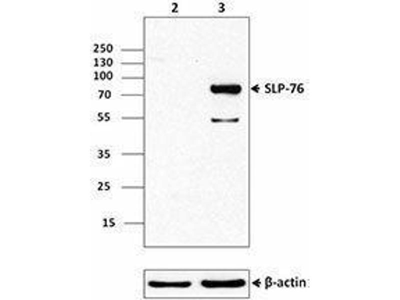 Western Blotting (WB) image for anti-Lymphocyte Cytosolic Protein 2 (SH2 Domain Containing Leukocyte Protein of 76kDa) (LCP2) (AA 216-434) antibody (ABIN2666114)