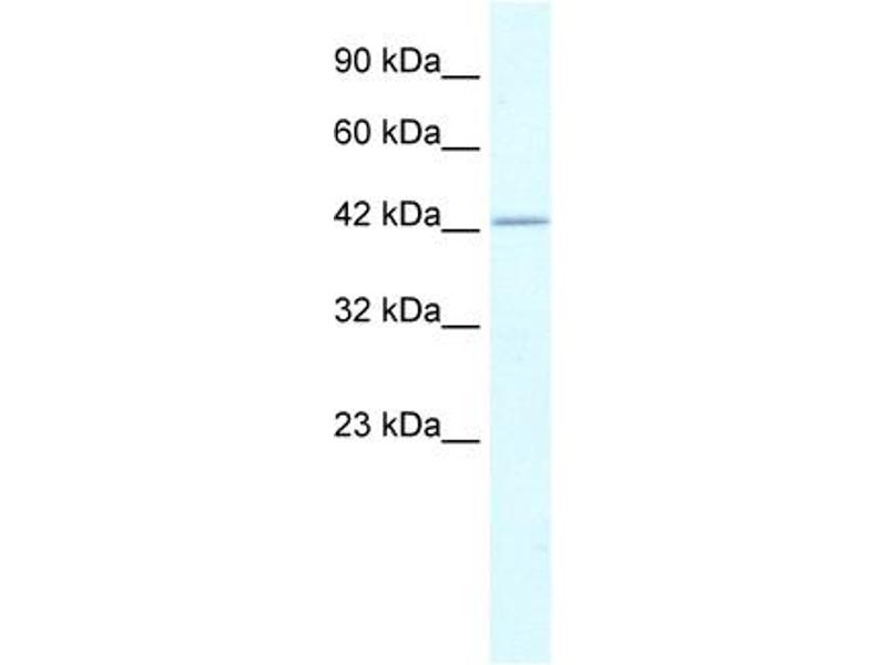 Western Blotting (WB) image for anti-RuvB-Like 2 (E. Coli) (RUVBL2) (N-Term) antibody (ABIN2779601)