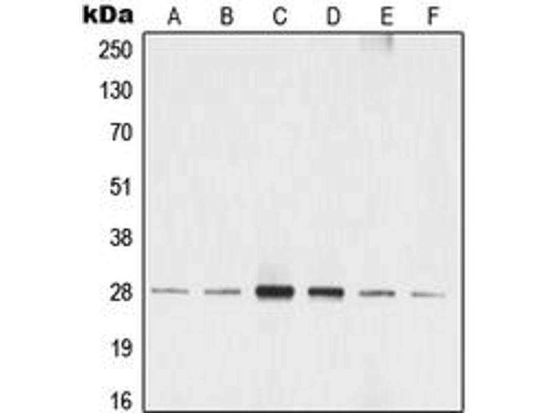 Western Blotting (WB) image for anti-tyrosine 3-Monooxygenase/tryptophan 5-Monooxygenase Activation Protein, zeta Polypeptide (YWHAZ) (pSer58) antibody (ABIN2705349)