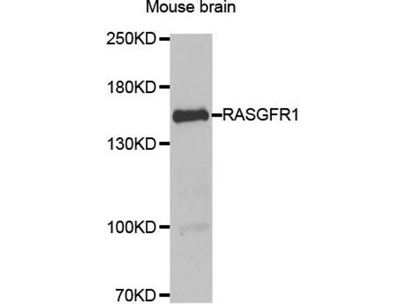 Western Blotting (WB) image for anti-Ras Protein-Specific Guanine Nucleotide-Releasing Factor 1 (RASGRF1) antibody (ABIN2564889)