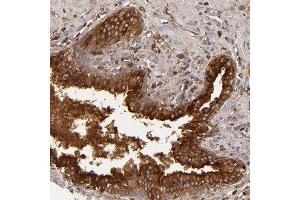 Immunohistochemistry (Paraffin-embedded Sections) (IHC (p)) image for anti-Complement Factor B (CFB) antibody (ABIN4299962)
