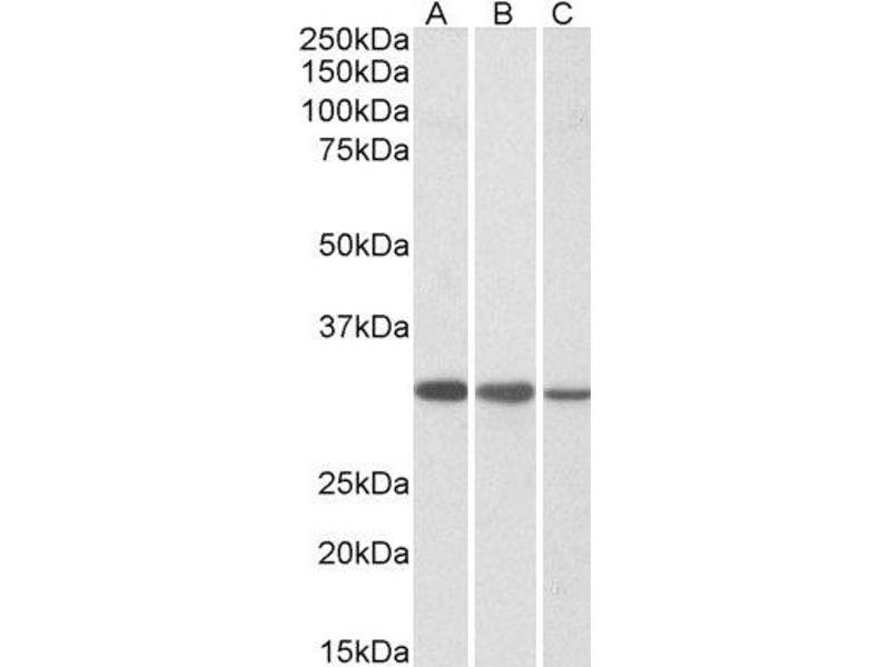 Western Blotting (WB) image for anti-Capping Protein (Actin Filament) Muscle Z-Line, beta (CAPZB) (C-Term) antibody (ABIN2561560)