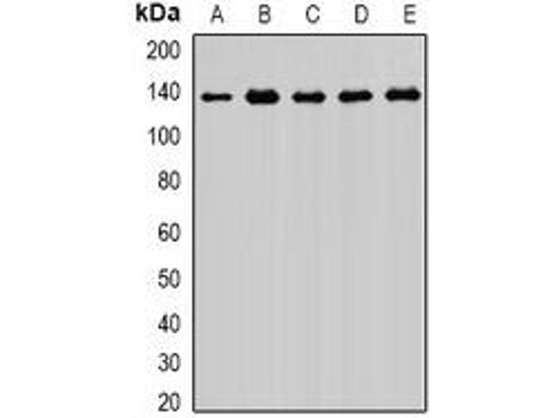 Western Blotting (WB) image for anti-Exportin 5 (XPO5) antibody (ABIN2966619)