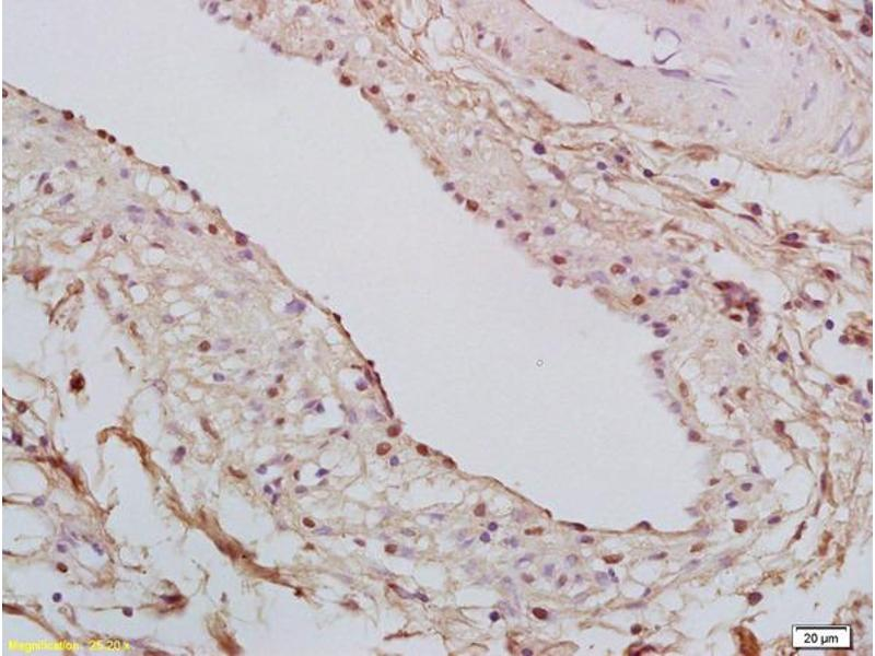 Immunohistochemistry (IHC) image for anti-Signal Transducer and Activator of Transcription 6, Interleukin-4 Induced (STAT6) (AA 625-670), (pThr645) antibody (ABIN712301)