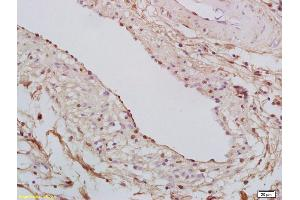 Immunohistochemistry (IHC) image for anti-STAT6 antibody (Signal Transducer and Activator of Transcription 6, Interleukin-4 Induced) (AA 625-670) (ABIN712301)