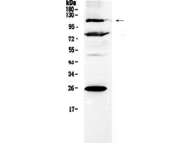 Western Blotting (WB) image for anti-Nuclear Factor of Activated T-Cells, Cytoplasmic, Calcineurin-Dependent 3 (NFATC3) (AA 630-712) antibody (ABIN5519045)