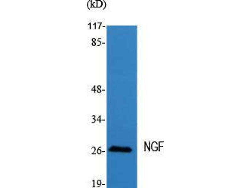 Western Blotting (WB) image for anti-Nerve Growth Factor beta (NGFB) (Internal Region) antibody (ABIN3185895)