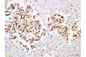 Immunohistochemistry (Paraffin-embedded Sections) (IHC (p)) image for anti-E1A Binding Protein P300 (EP300) (pSer1834) antibody (ABIN800613)