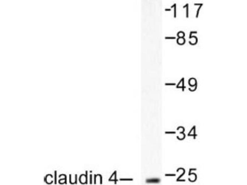 Western Blotting (WB) image for anti-Claudin 4 (CLDN4) antibody (ABIN407633)