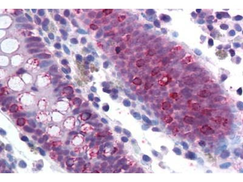 Immunohistochemistry (Paraffin-embedded Sections) (IHC (p)) image for anti-Splicing Factor 1 (SF1) (AA 517-566) antibody (ABIN214143)