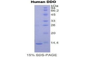 Image no. 1 for D-Aspartate Oxidase (DDO) (AA 1-341) protein (His tag) (ABIN1079347)