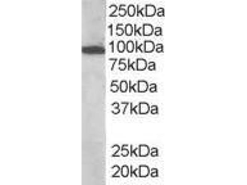 image for anti-VAV3 antibody (Vav 3 Oncogene) (Internal Region) (ABIN185278)