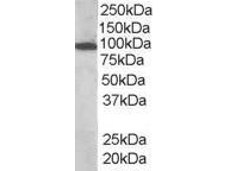 image for anti-Vav 3 Oncogene (VAV3) (Internal Region) antibody (ABIN185278)