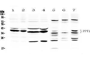 Image no. 3 for anti-Palmitoyl-Protein Thioesterase 1 (PPT1) (AA 191-224), (C-Term) antibody (ABIN3043357)