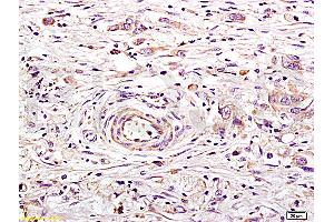 Image no. 1 for anti-Angiotensin I Converting Enzyme 2 (ACE2) (AA 599-649) antibody (ABIN730798)