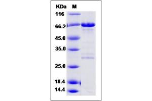 Image no. 1 for BRCA2 and CDKN1A Interacting Protein (BCCIP) (AA 1-314) protein (GST tag,His tag) (ABIN2006186)