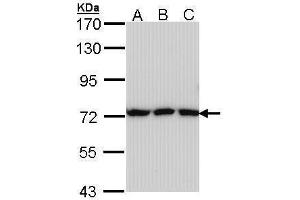 Image no. 1 for anti-Transferrin (TF) (Center) antibody (ABIN2854907)