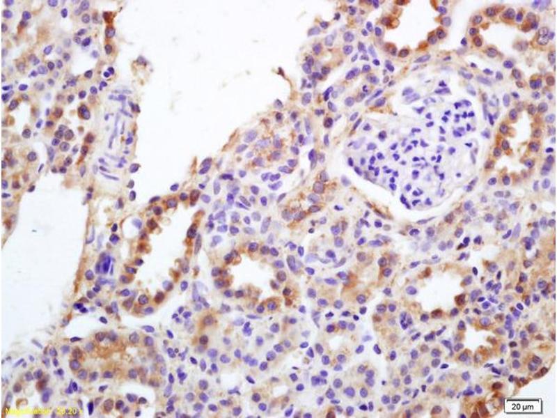 Immunohistochemistry (IHC) image for anti-erythrocyte Membrane Protein Band 4.9 (Dematin) (EPB49) (AA 260-310) antibody (ABIN701065)