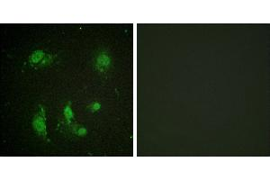 Immunofluorescence (IF) image for anti-BIRC5 antibody (Baculoviral IAP Repeat-Containing 5) (Thr117) (ABIN2163020)
