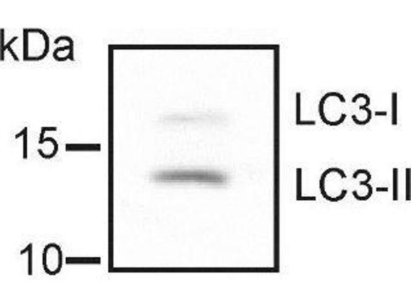 Western Blotting (WB) image for anti-Microtubule-Associated Protein 1 Light Chain 3 beta (MAP1LC3B) (AA 1-100), (N-Term) antibody (ABIN250638)