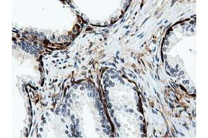 Image no. 6 for anti-5'-Nucleotidase Domain Containing 1 (NT5DC1) antibody (ABIN1499837)