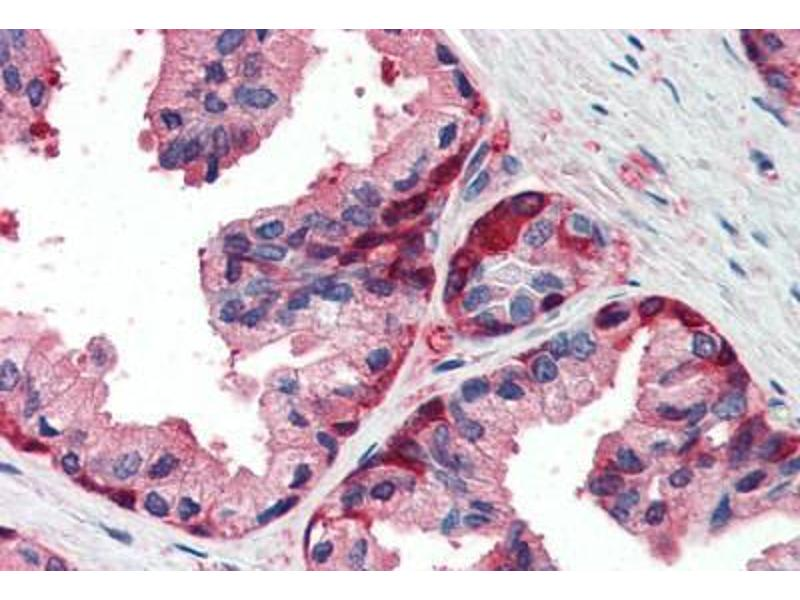 Immunohistochemistry (Paraffin-embedded Sections) (IHC (p)) image for anti-Glutathione S-Transferase pi 1 (GSTP1) (AA 22-33) antibody (ABIN337104)