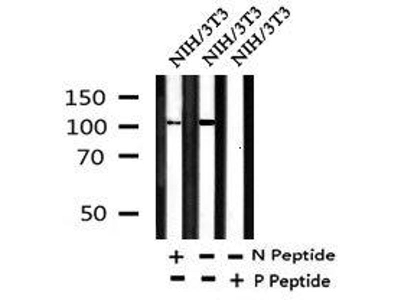 Image no. 2 for anti-EPH Receptor A2 (EPHA2) (pTyr588) antibody (ABIN6269973)