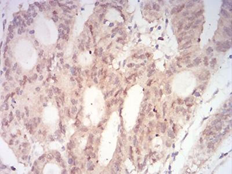 Immunohistochemistry (IHC) image for anti-MAP2K3 antibody (Mitogen-Activated Protein Kinase Kinase 3) (AA 1-138) (ABIN5542528)