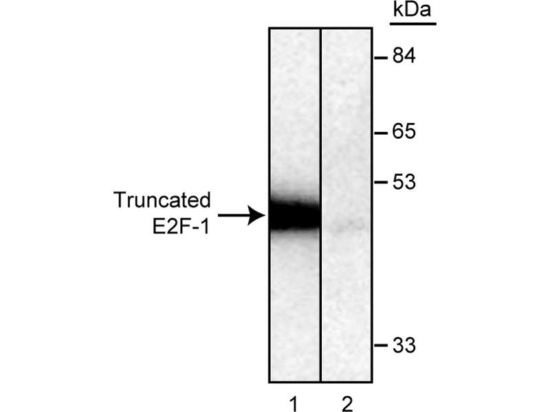 Western Blotting (WB) image for anti-E2F1 antibody (E2F Transcription Factor 1) (ABIN967439)