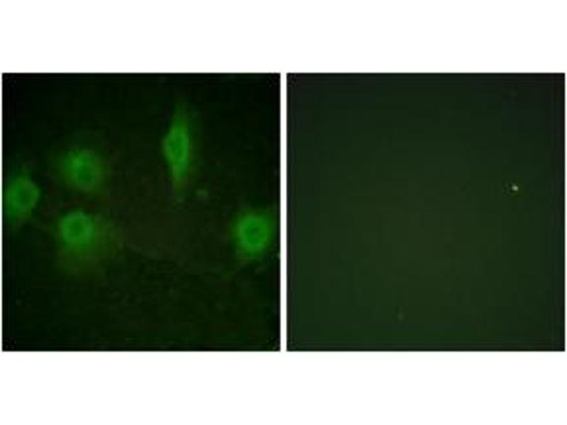 Immunofluorescence (IF) image for anti-IL9 Receptor antibody (Interleukin 9 Receptor) (pSer519) (ABIN1531670)