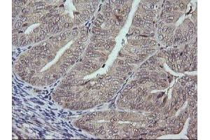Immunohistochemistry (IHC) image for anti-Mitogen-Activated Protein Kinase 9 (MAPK9) antibody (ABIN4327971)