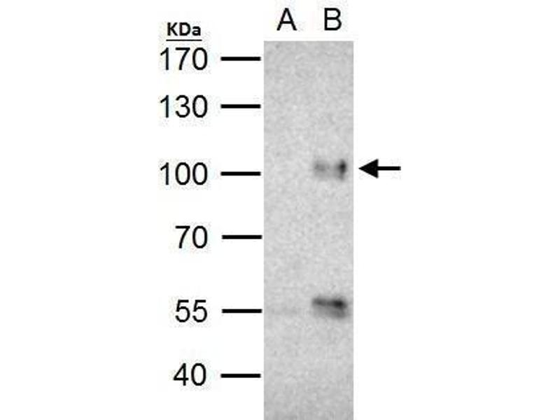 Immunoprecipitation (IP) image for anti-Forkhead Box O3 (FOXO3) (C-Term) antibody (ABIN2854686)