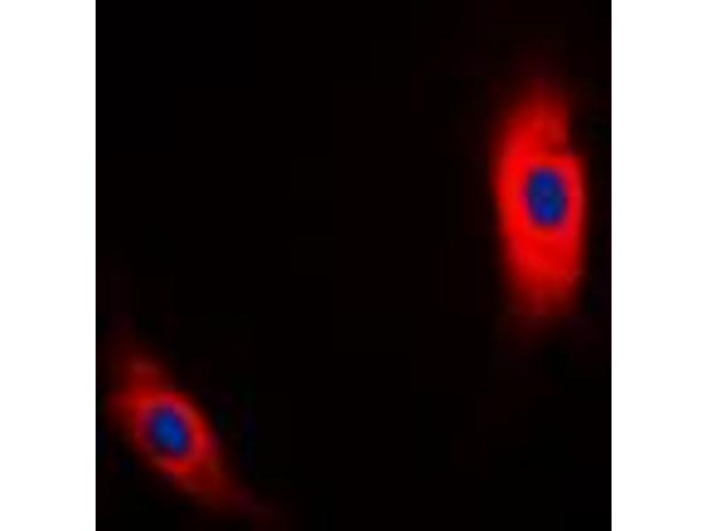 Immunofluorescence (IF) image for anti-Casein Kinase 1, alpha 1 (CSNK1A1) (Center) antibody (ABIN2705885)