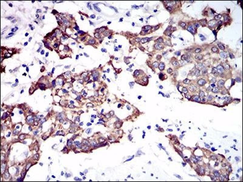 Image no. 2 for anti-Keratin 5 (KRT5) (AA 316-590) antibody (ABIN1724880)