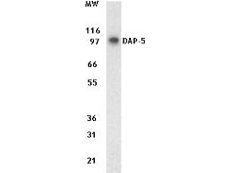 Western Blotting (WB) image for anti-EIF4G2 antibody (Eukaryotic Translation Initiation Factor 4 gamma 2) (ABIN265943)