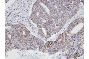 Immunohistochemistry (Paraffin-embedded Sections) (IHC (p)) image for anti-Actin Related Protein 2/3 Complex, Subunit 3, 21kDa (ARPC3) (Center) antibody (ABIN441426)