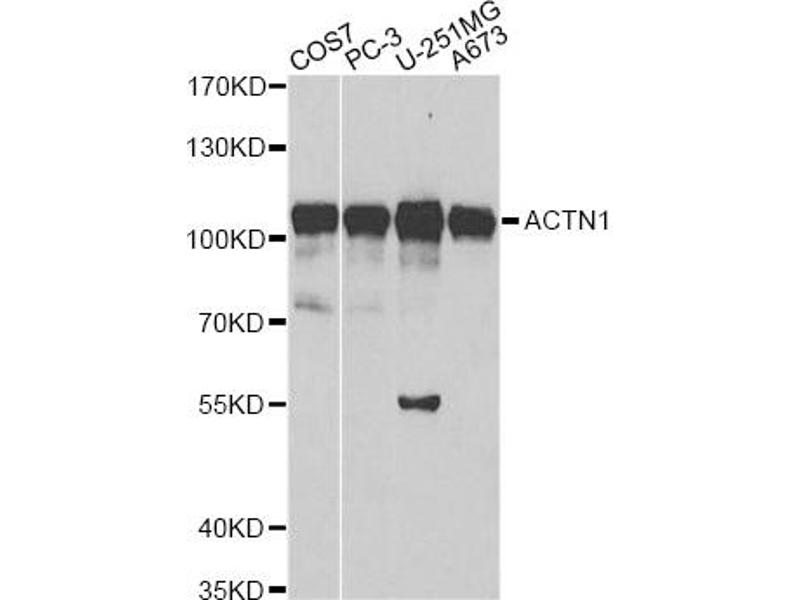 Image no. 2 for anti-Actinin, alpha 1 (ACTN1) antibody (ABIN6567190)