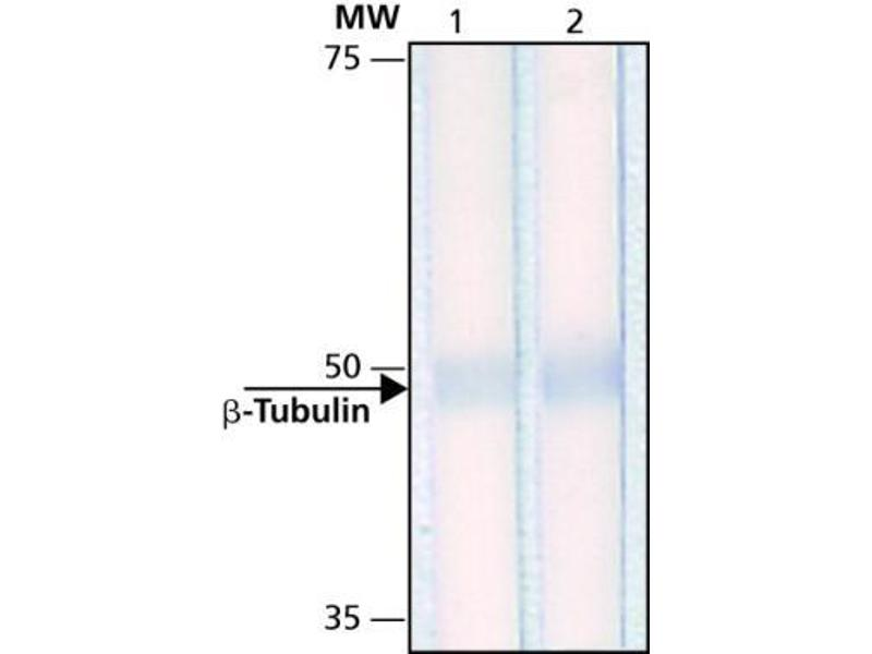 Western Blotting (WB) image for anti-TUBB antibody (Tubulin, beta) (ABIN136835)