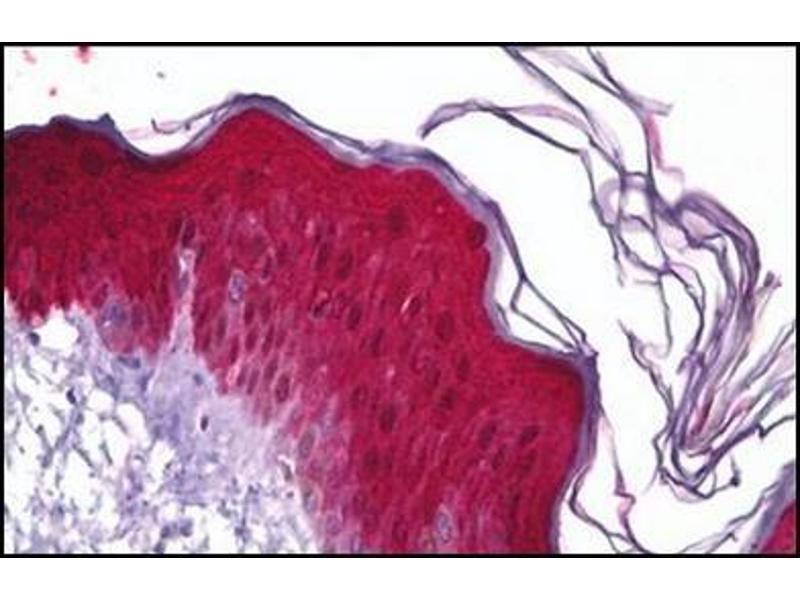 Immunohistochemistry (Paraffin-embedded Sections) (IHC (p)) image for anti-Heat Shock 27kDa Protein 1 (HSPB1) antibody (ABIN5611604)